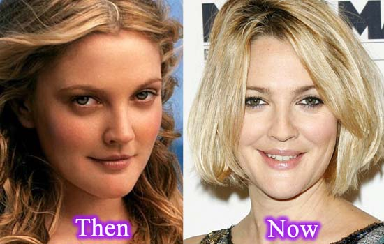 Drew barrymore plastic surgery