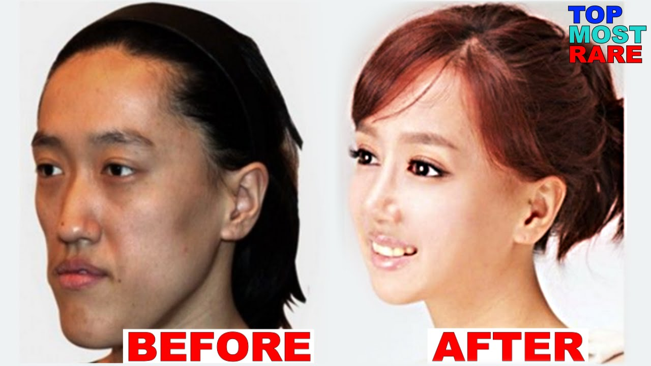 Korean plastic surgery before after