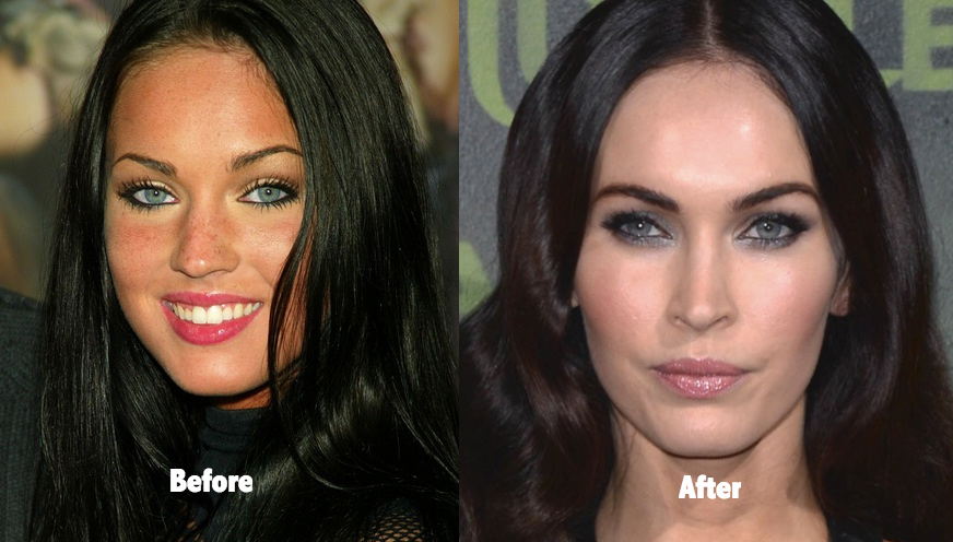 Megan fox before plastic surgery