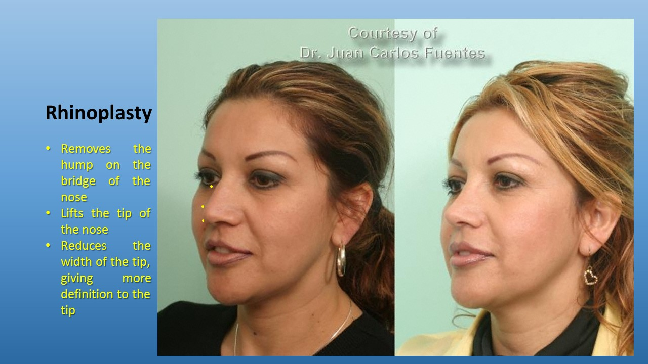Mexican plastic surgery
