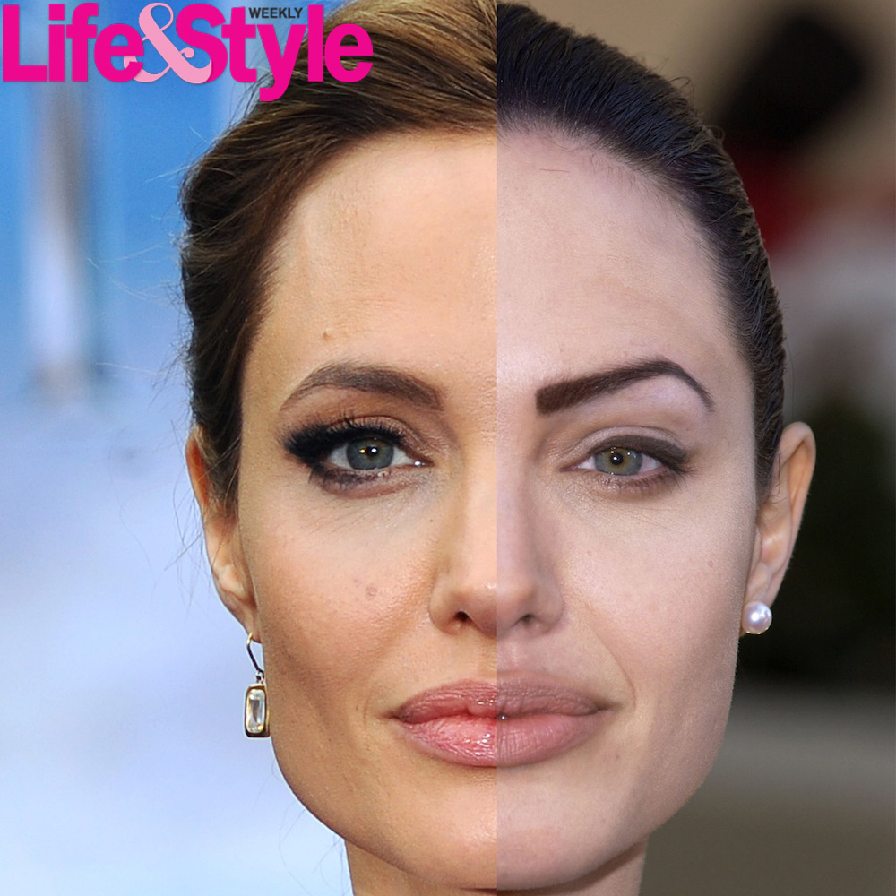 Before and after plastic surgery pictures