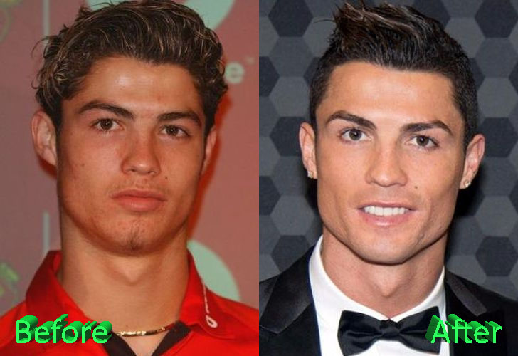 Cristiano ronaldo before plastic surgery