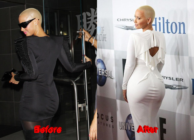 Has amber rose had plastic surgery