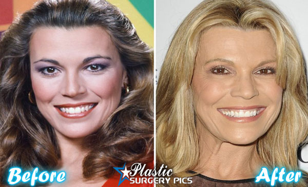 Has vanna white had plastic surgery
