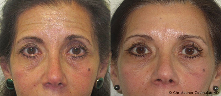Plastic surgery for dark circles