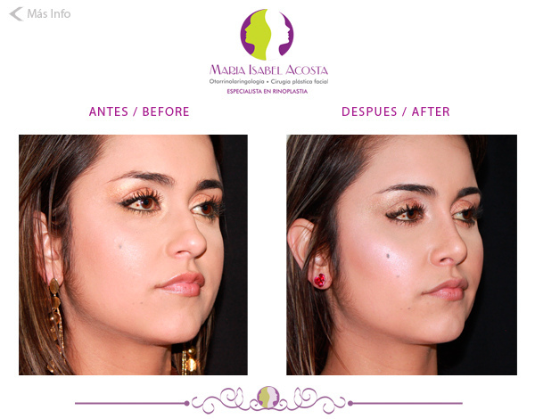 Plastic surgery in colombia before and after