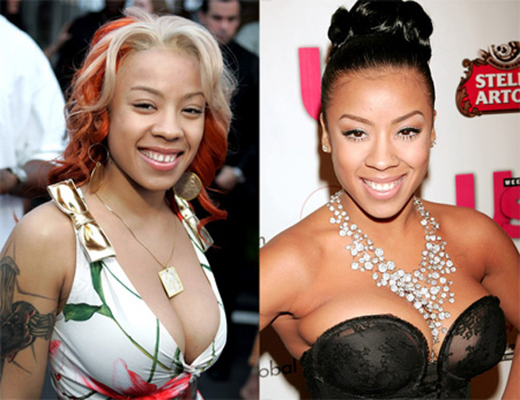 Keyshia cole plastic surgery