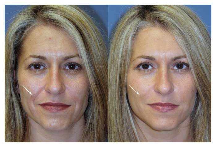 Best plastic surgery in raleigh nc