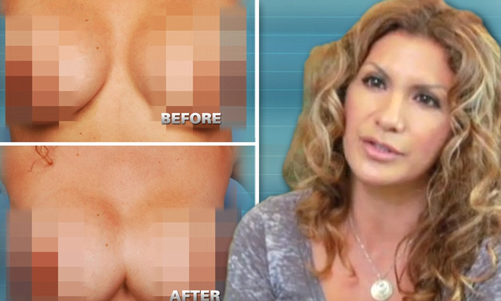 Botched plastic surgery photos before and after