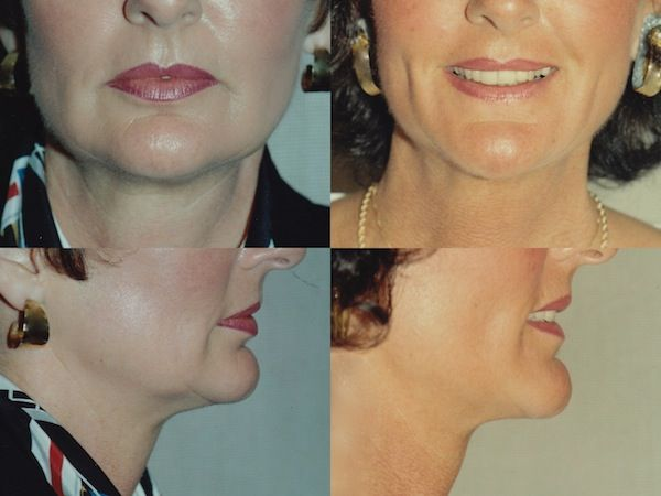 Plastic surgery for neck