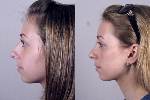 Plastic surgery recovery centers