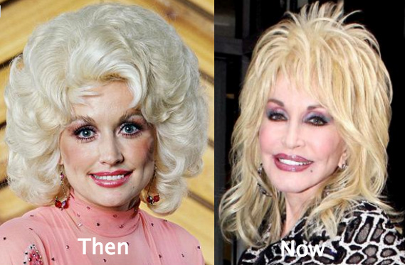 Did dolly parton have plastic surgery