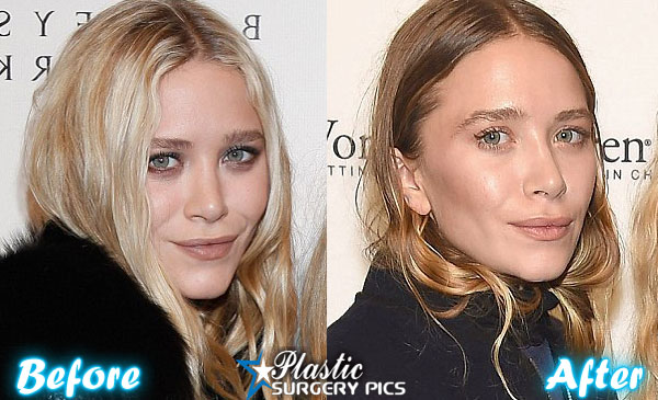 Has mary kate and ashley had plastic surgery