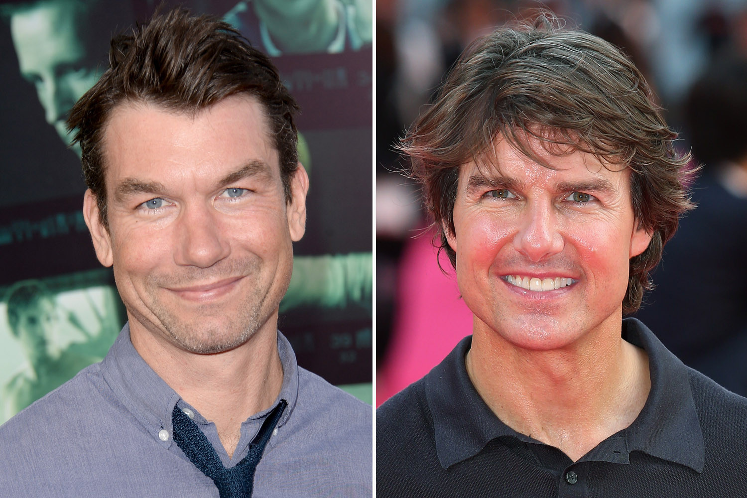 Jerry o connell plastic surgery
