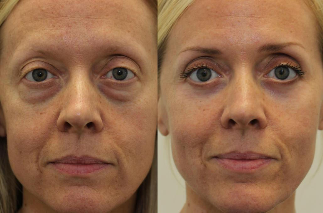 Cosmetic surgery eye bags