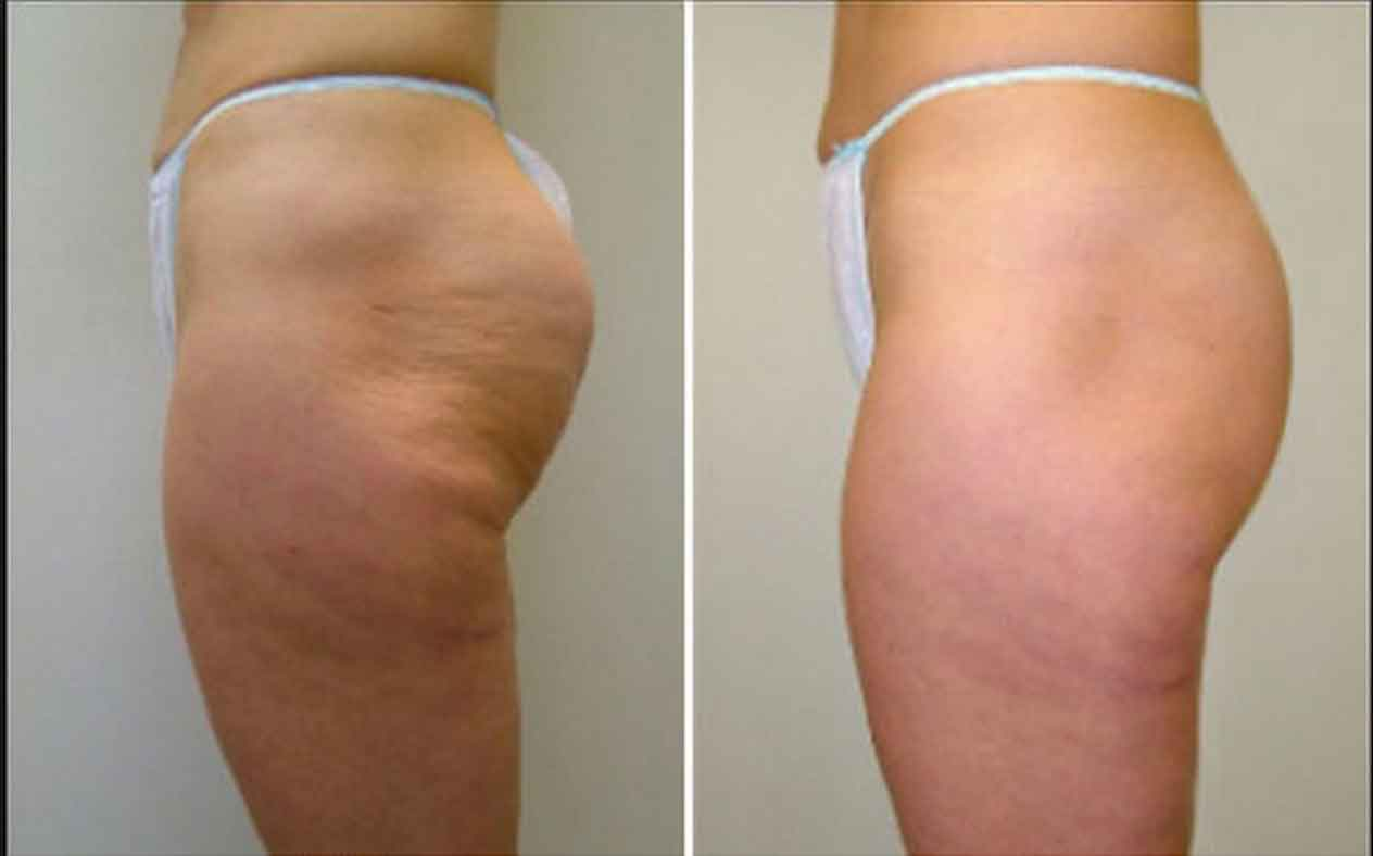 Cosmetic surgery for stretch marks