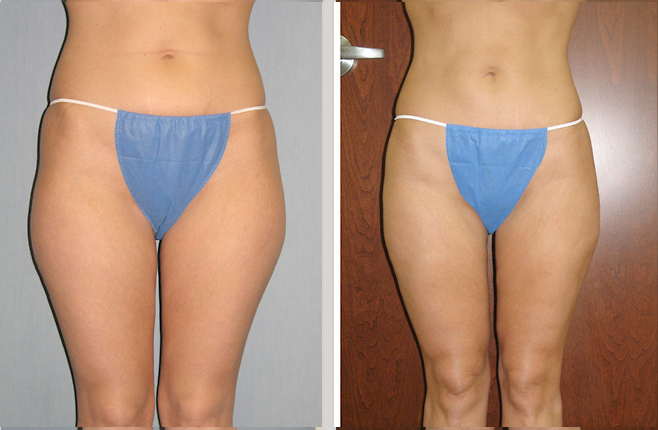 Cosmetic surgery st louis