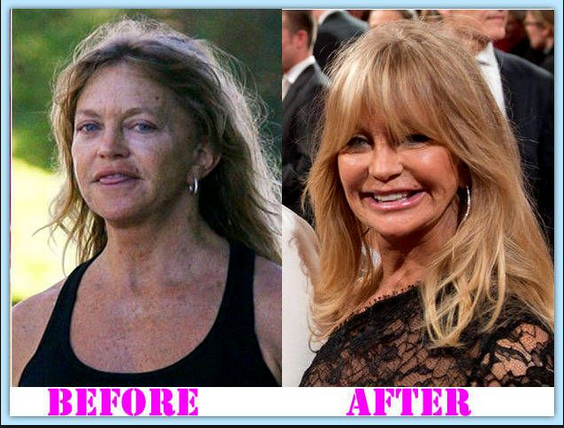 Goldie hawn cosmetic surgery