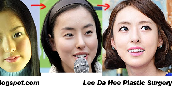 Lee da hee plastic surgery