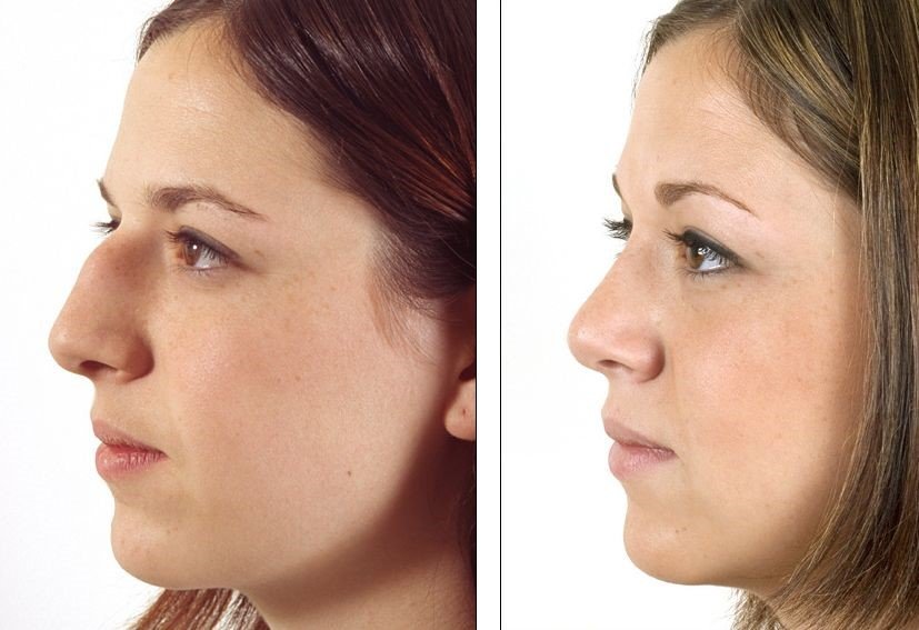 Nose cosmetic surgery cost