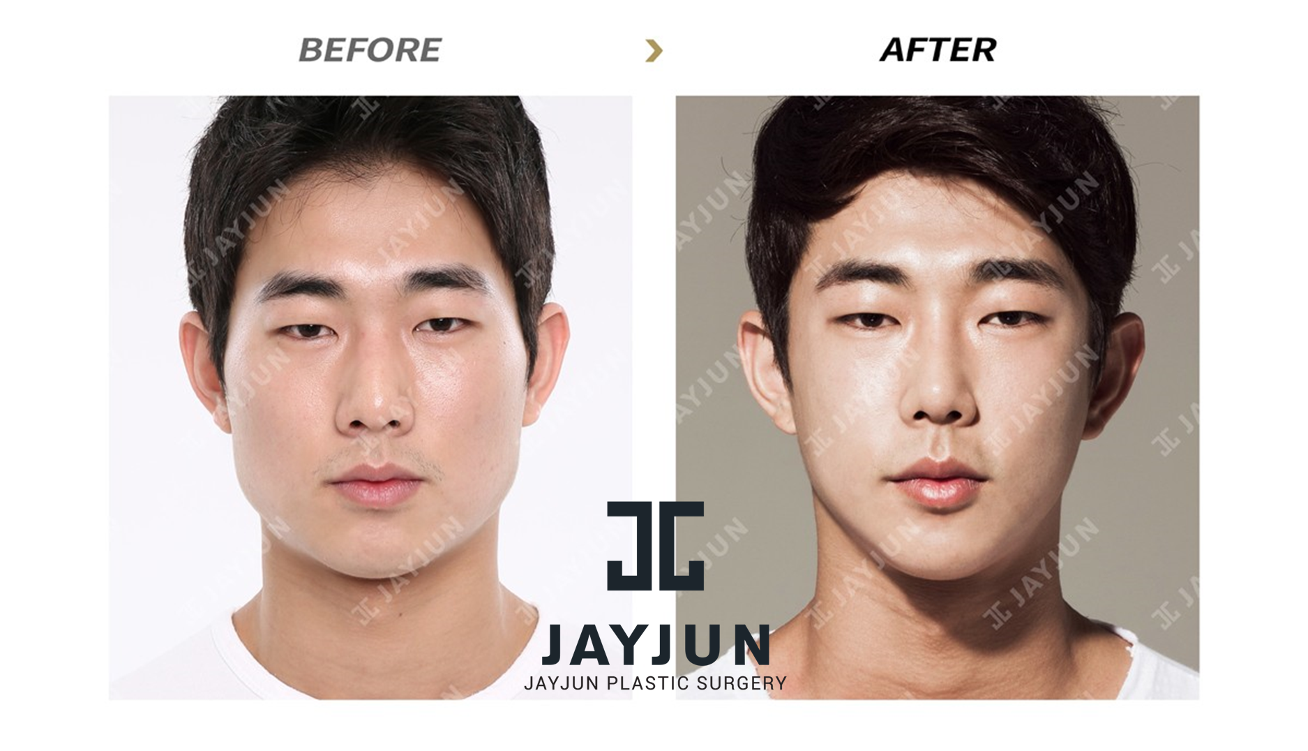 South korean cosmetic surgery