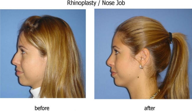 Clinic of cosmetic surgery milwaukee wi