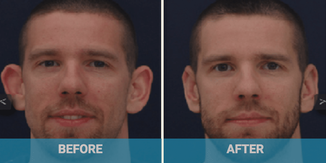 Cosmetic ear surgery cost