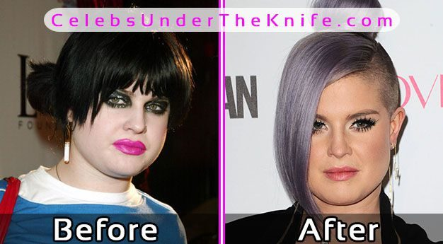 Kelly osbourne plastic surgery