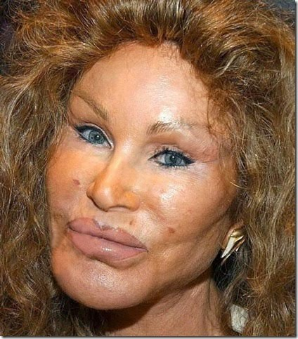 Lion face plastic surgery