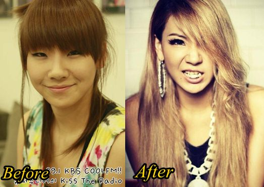 2ne1 minzy plastic surgery photo - 1