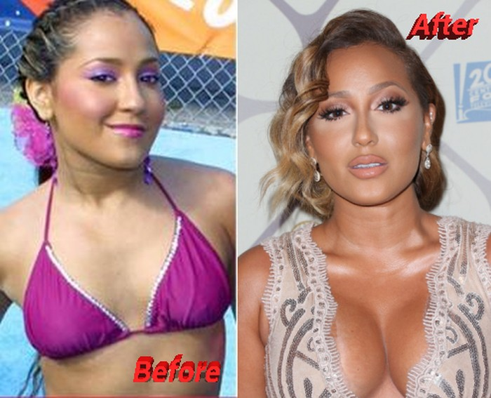 adrienne bailon plastic surgery photo - 1