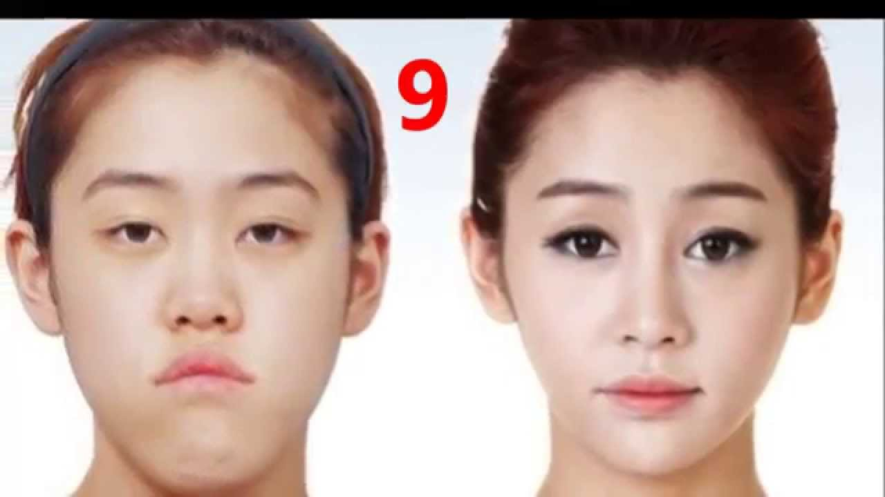 amazing plastic surgery before and after photo - 1