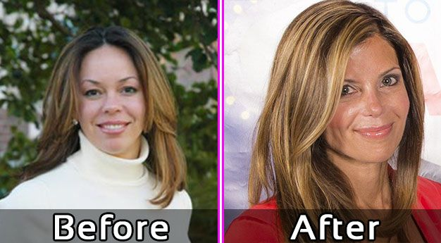amy from flipping vegas before plastic surgery photo - 1