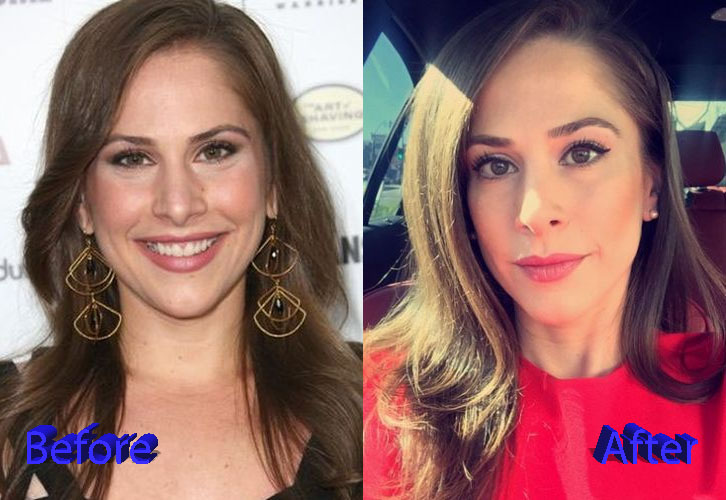 ana kasparian plastic surgery photo - 1