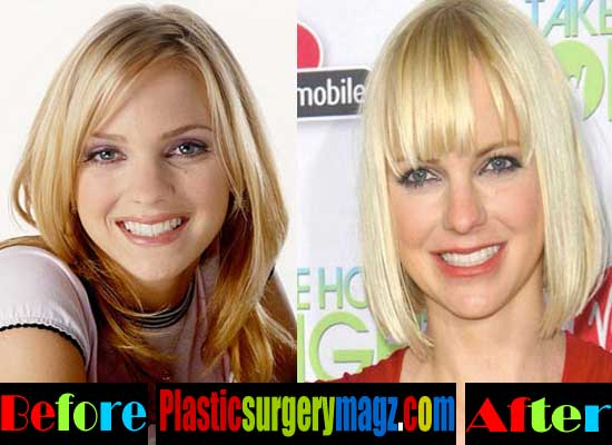 anna faris plastic surgery photo - 1