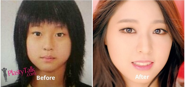 aoa seolhyun plastic surgery photo - 1