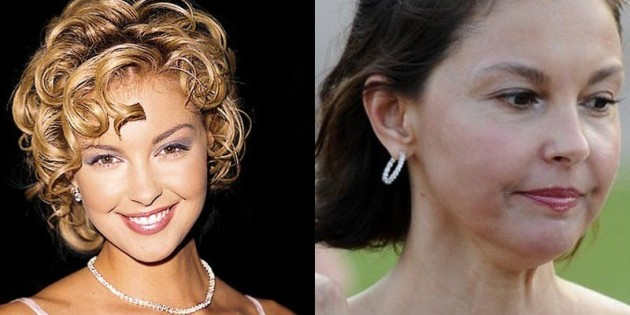 ashley judd plastic surgery photo - 1