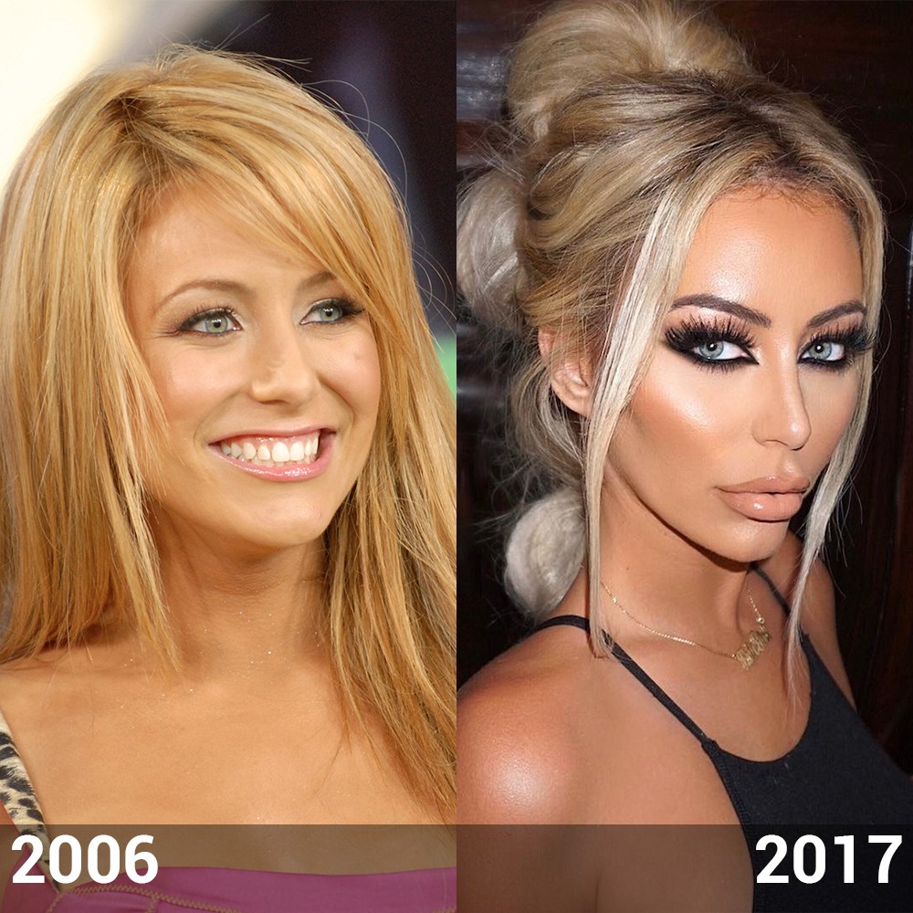 aubrey o day plastic surgery photo - 1