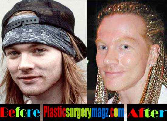 axl rose plastic surgery photo - 1