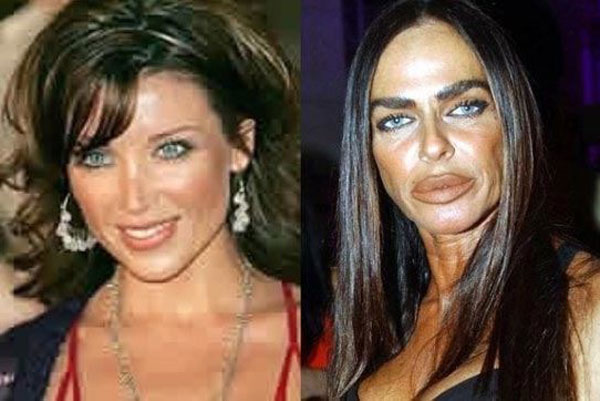 bad plastic surgery photos before and after photo - 1