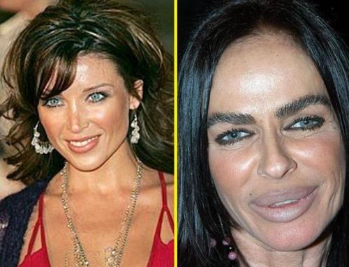 bad plastic surgery pictures photo - 1