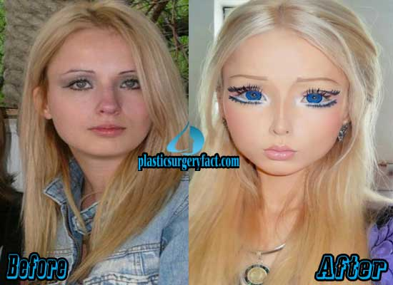 barbie woman plastic surgery before and after photo - 1