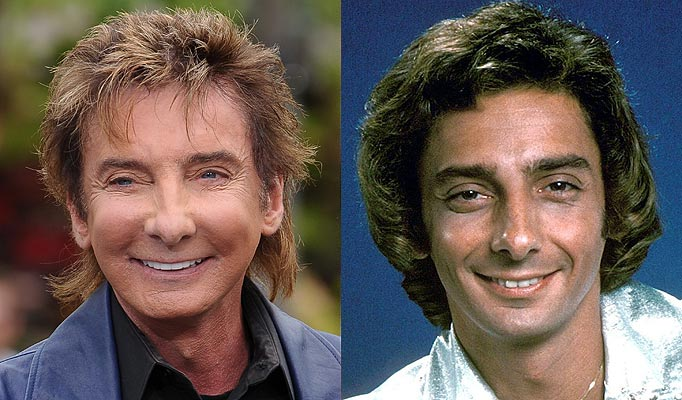 barry manilow plastic surgery photo - 1