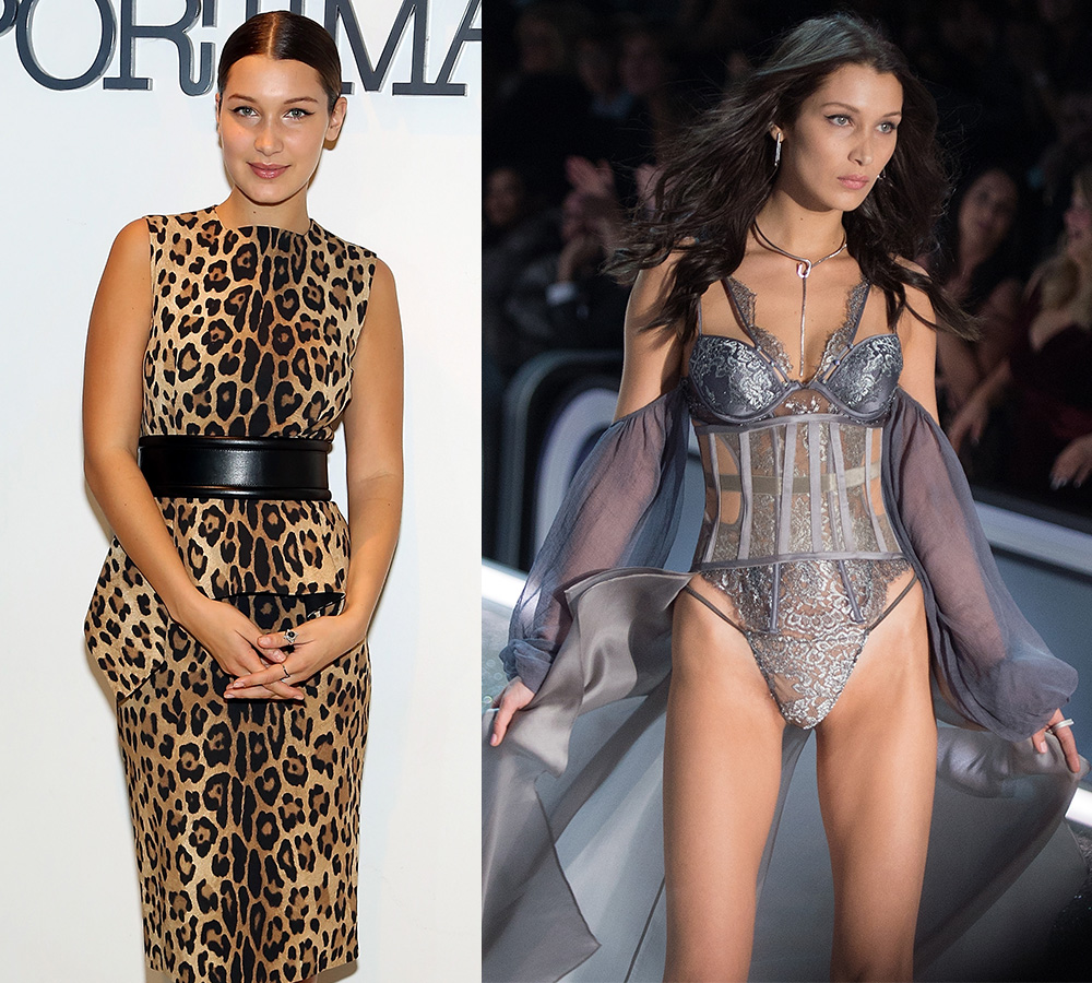 bella hadid plastic surgery photo - 1