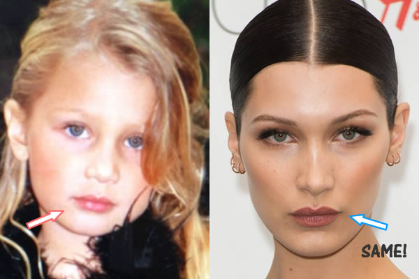 bella hadid surgery plastic photo - 1
