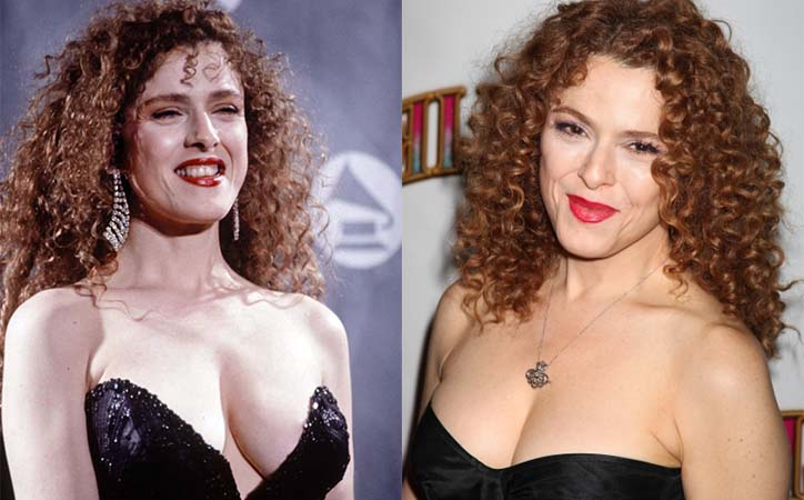 bernadette peters plastic surgery photo - 1