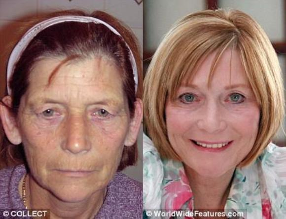 best plastic surgery before and after photo - 1