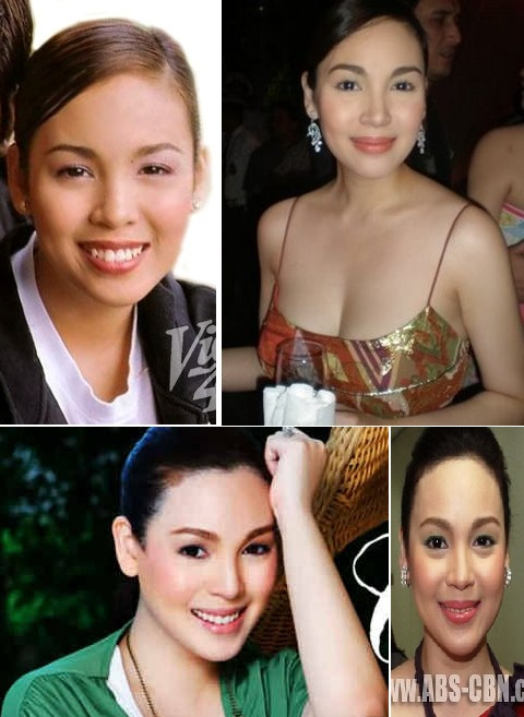 best plastic surgery in thailand photo - 1