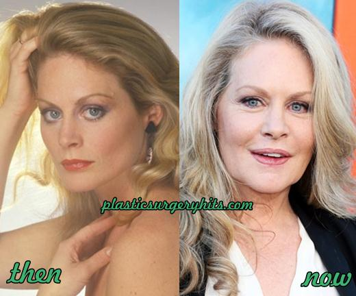 beverly d angelo plastic surgery photo - 1