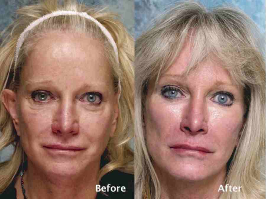 beverly hills institute of plastic surgery photo - 1